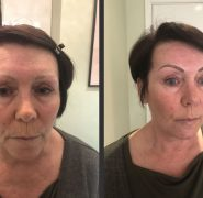 Semi Permanent - Make up by CP - Semi Permanent Eyebrows - Eyebrow - Before and after - Semi Permanent Tattoo - Make Up - Maidstone, Ashfor
