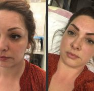 Semi Permanent - Make up by Chloe Pritch - Semi Permanent Eyebrows - Eyebrow - Before and after - Semi Permanent Tattoo - Kent